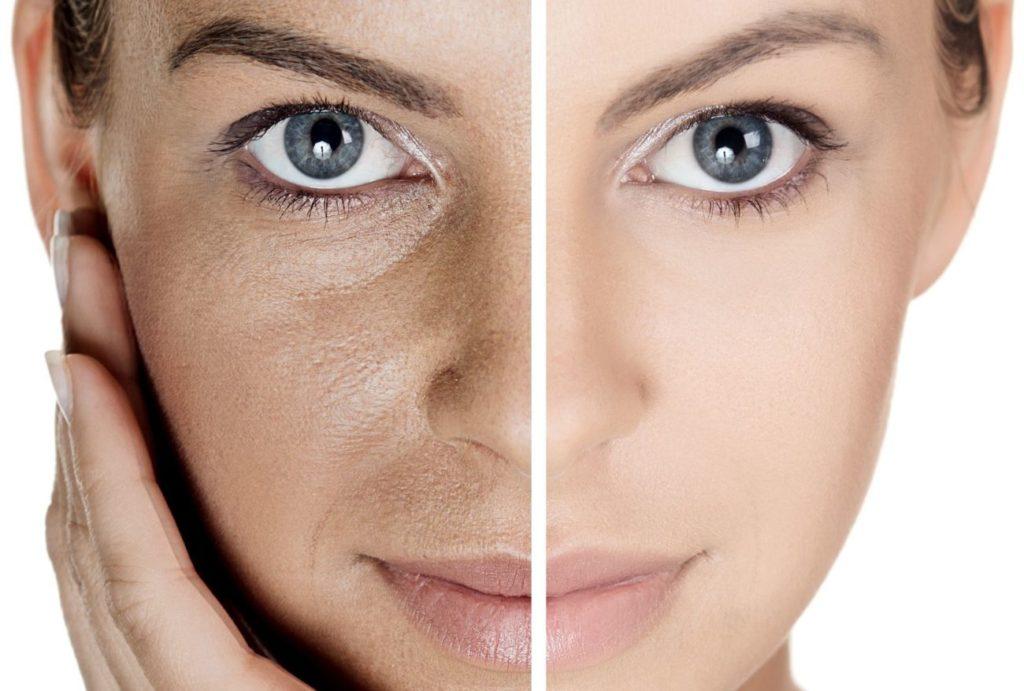 Пористое лицо: как сузить поры на лице?