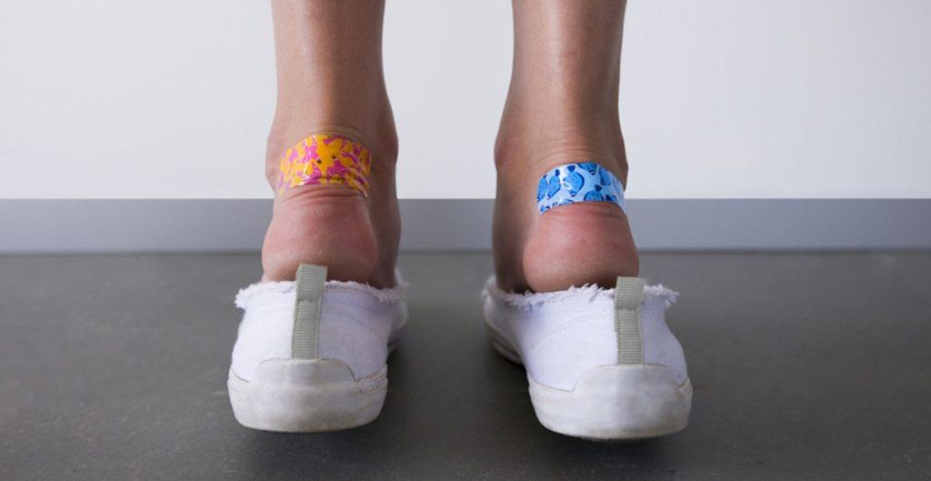 Лечение мозолей на ногах