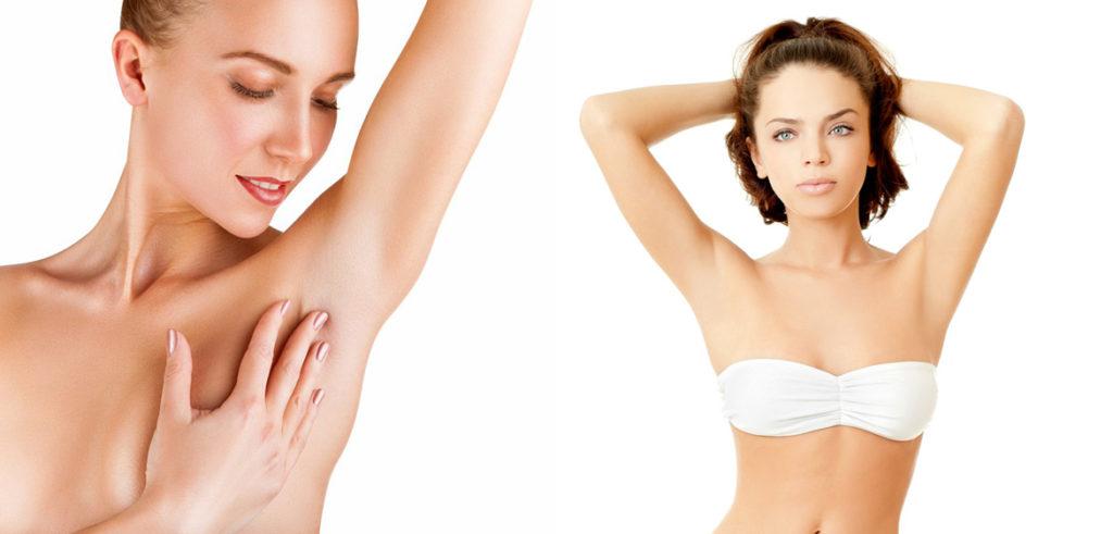 Эпиляция различных участков кожи