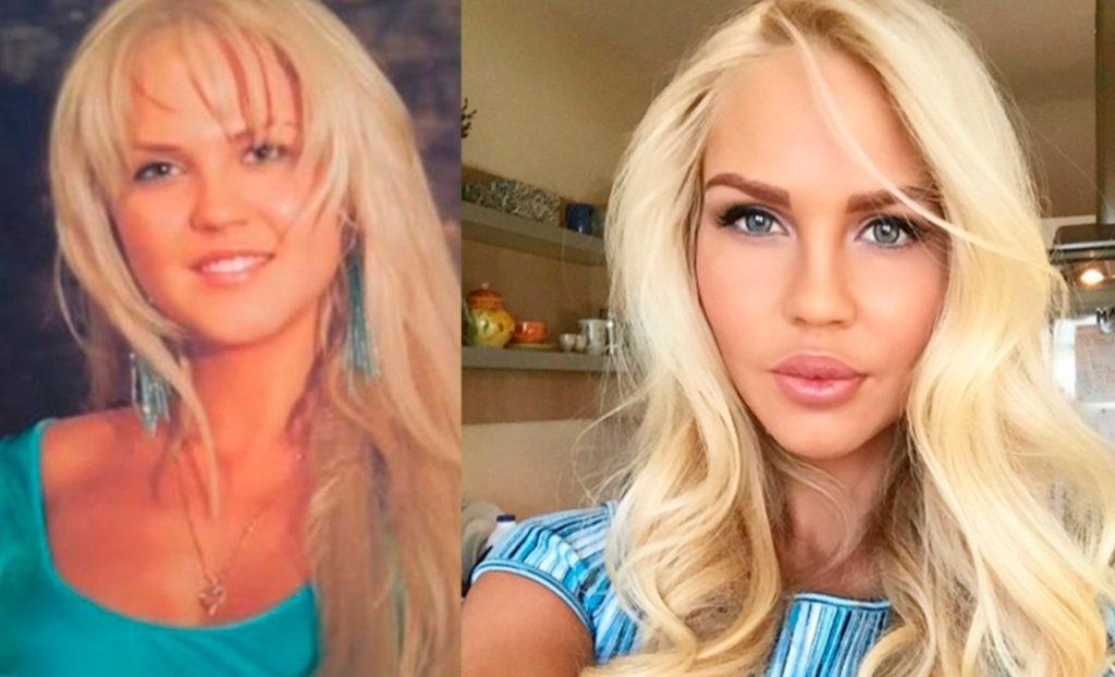 Мария Погребняк до и после